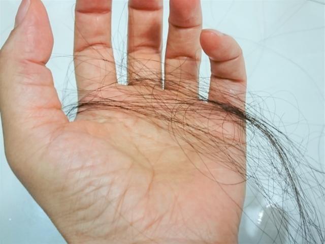 冬の頭皮乾燥が薄毛の原因に