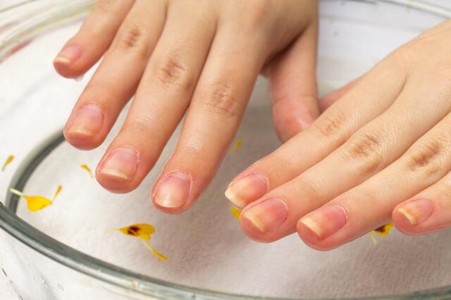 ボロボロの爪を治す方法
