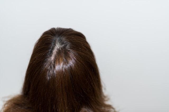 髪の毛の紫外線ダメージの影響